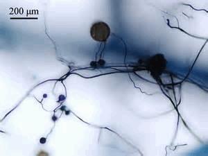 Glomus mosseae et mycellium.jpg