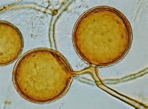 Glomus intraradices.jpg